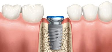 Los Gatos Dental Implants, los gatos dentist, los gatos orthodontics, cosmetic dentistry