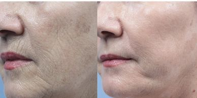 Our new Fractora not only tightens the skin and reduces wrinkles but it also reduces hyperpigmentati