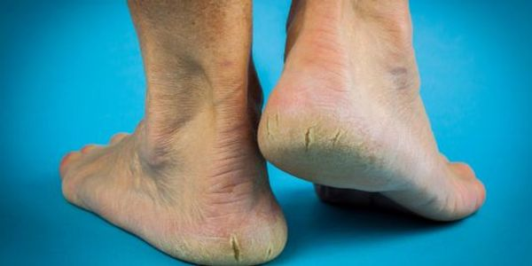Orthotics for foot pain, knee pain, lower back pain and more!
