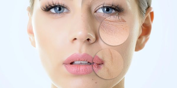 Botox injections can minimize blemishes and scars