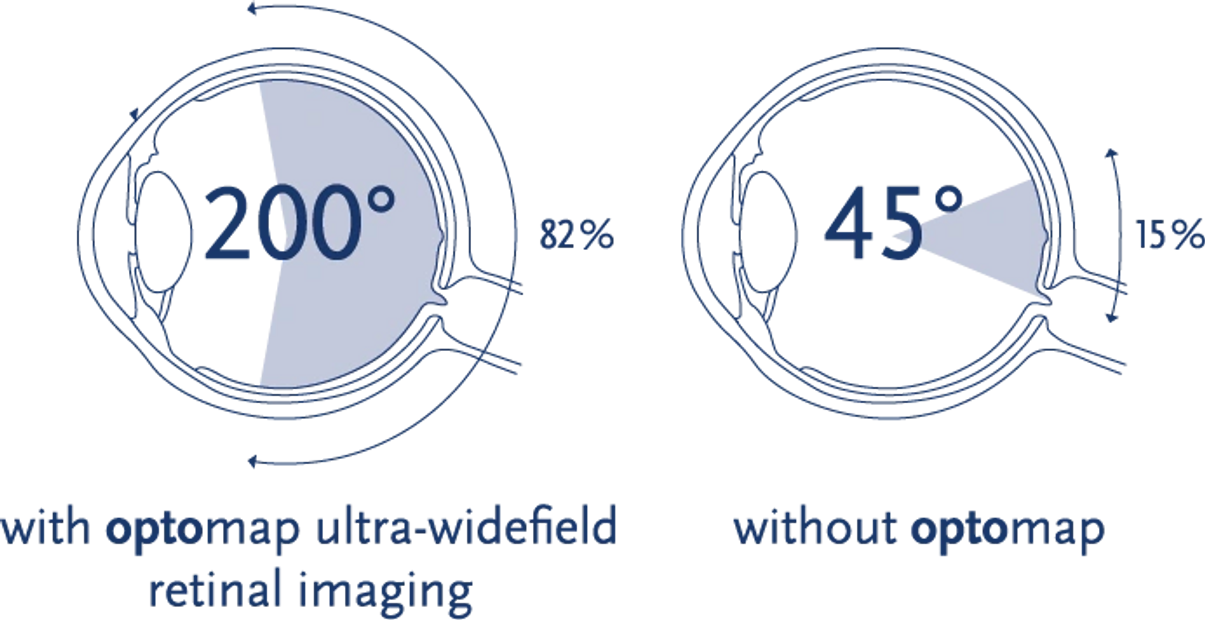 Optomap retinal imaging vs. other retinal imaging