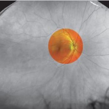 Fundus Camera View. Approximately 45 degree angle visibility