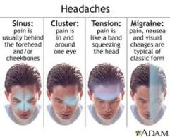 Migraine, Tension, and cluster Headaches