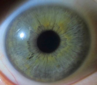 About Iridology