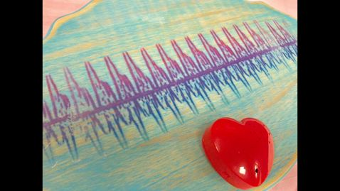This recorded heartbeat keepsake is a favorite for all of our families and especially grandparents!