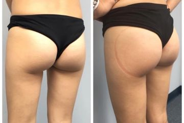 Instant butt lift. Cellulite reduction.  No injections. No pain. No downtime.  Immediate results.