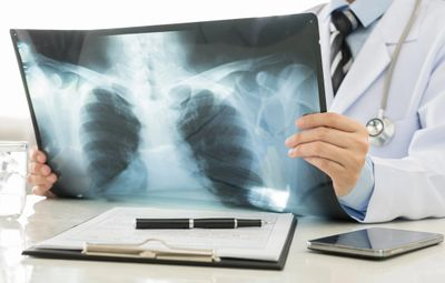 Peritoneal Mesothelioma Lawsuits