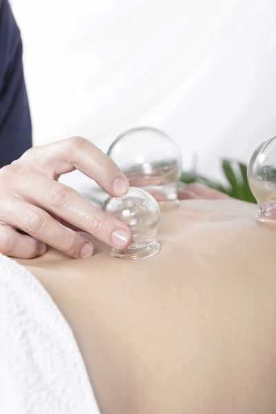 Cupping is one of the many beneficial therapies offered at Los Gatos Acupuncture.