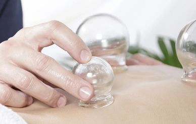 cupping therapy, Chinese medicine, cupping, vacuum cupping