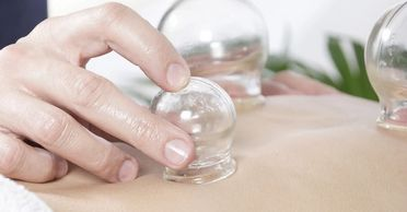 cupping gua sha manual therapy physical medicine chinese healing health wellness acupuncture leah