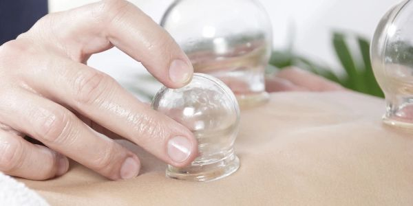 CUPPING  Accomplish goals and help restore health with dynamic cupping therapy. Newbies welcome!