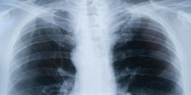 Mesothelioma Medcial Lawsuits