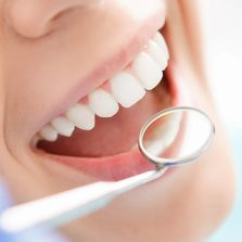 Dental Insurance Ohio Dental Insurance Rocky River Dental Insurance Mentor Dental Insurance