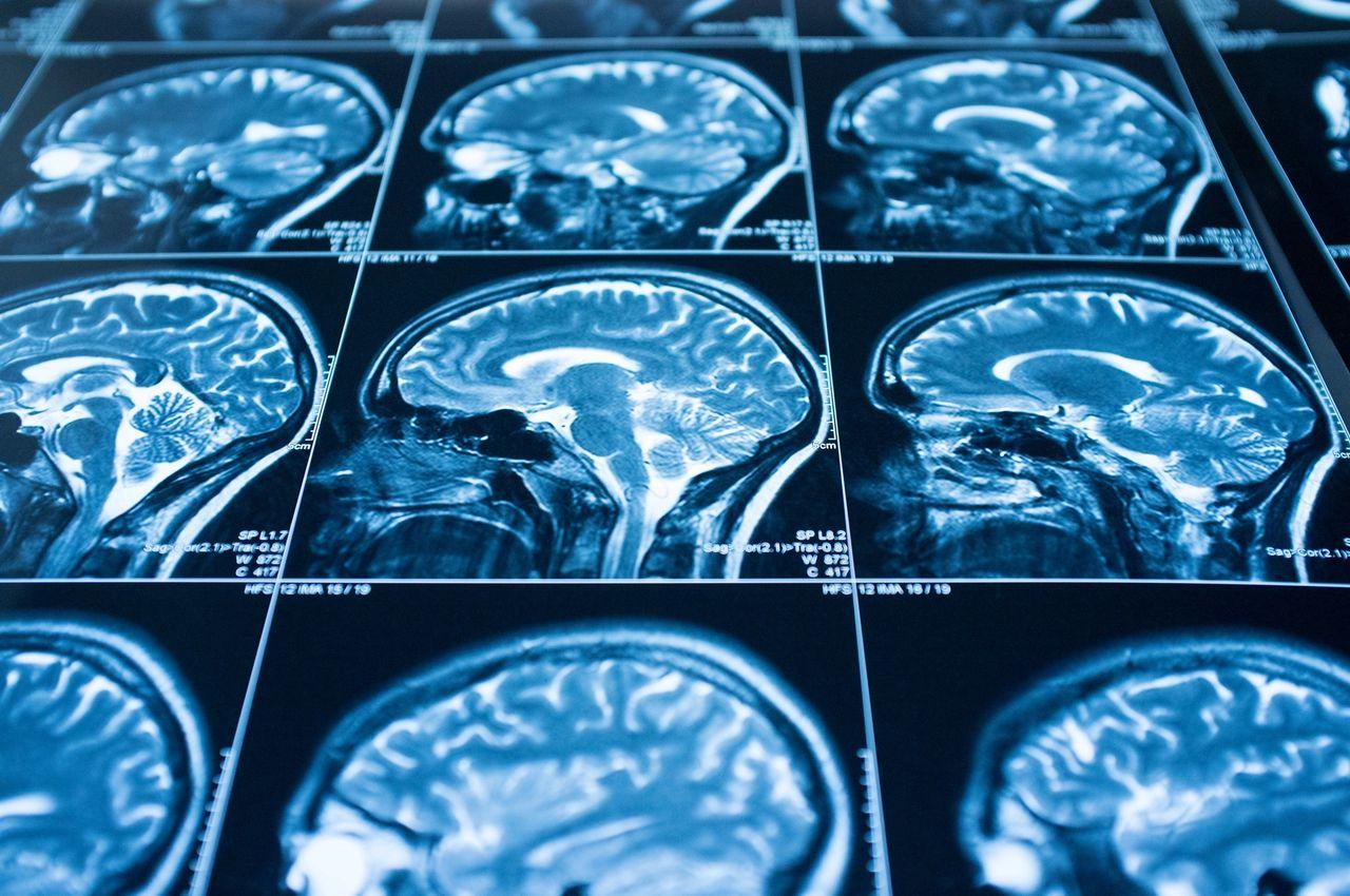 Protect against Alzheimer's