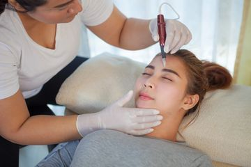 microneedling treatment that stimulates collagen, tightens the skin, reduces acne scars and improves skin tone and texture