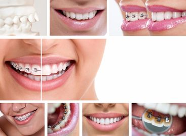 Invisalign Aligners superior to braces and brackets.