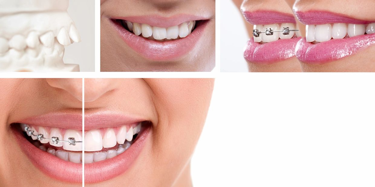 Pictures of metal braces. We offer various options, so head over to the Treatment page to see more.