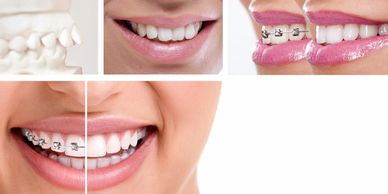 Orthodontic treatment with braces can be taken by anyone with crooked teeth by an orthodontist