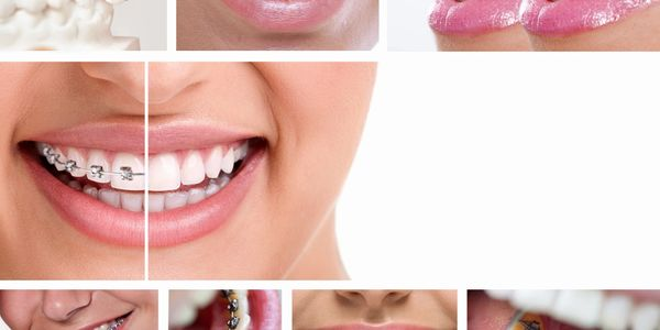 Braces - clear aligners, retainers, nightguard, jaw, smiles,crooked teeth,cosmetic
