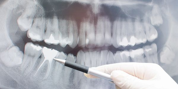 DENTAL PANORAMIC XRAY