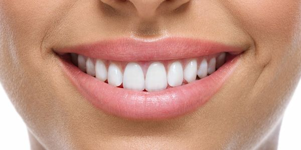Le blanchiment dentaire permet de traiter les causes externes de la coloration des dents