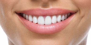 Smile Make overs, Cosmetic Dentistry, Teeth Whitening. Los Gatos Dentist, orthodontics, dentist