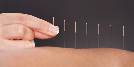 Physiotherapy Clinic in Red Deer, Acupuncture in Red Deer