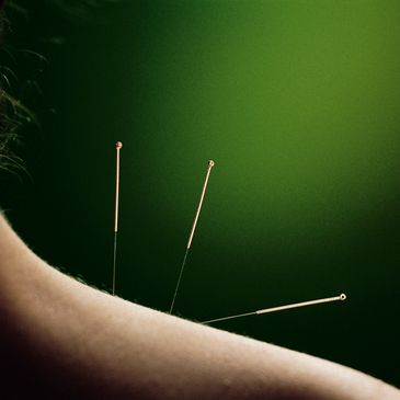 Green Roads Acupuncture