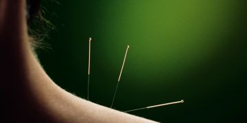 Acupuncture, Holistic Healing, Chinese Medicine