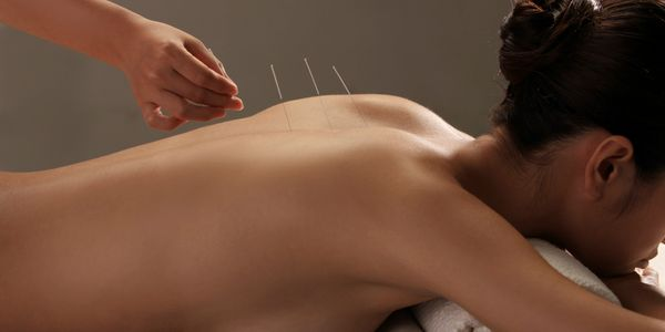 Acupuncture Los Angeles Natural Pain Relief in Beverly Hills
