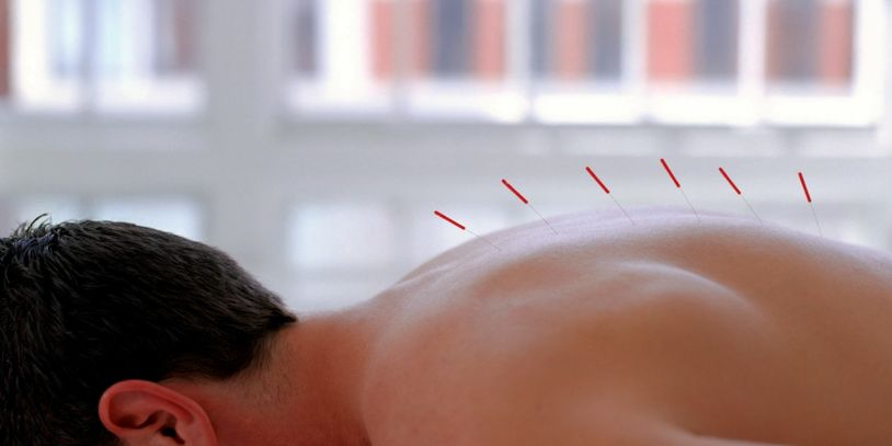 Person with acupuncture needles in back