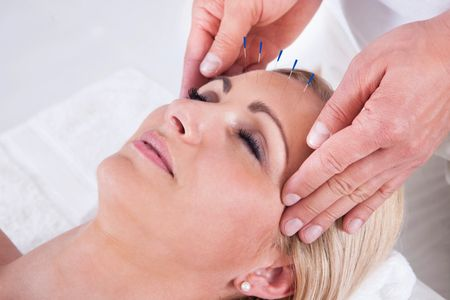 Does acupuncture work? Acupuncture in Calgary, acupuncture is very relaxing, to the surprise of many