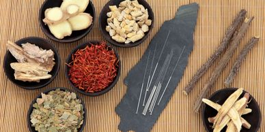 Herbs and acupuncture needles for health and wellness