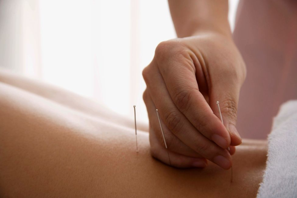 Acupuncture for Pain Management, Acupuncture  for women's Health, Acupuncture for Pms