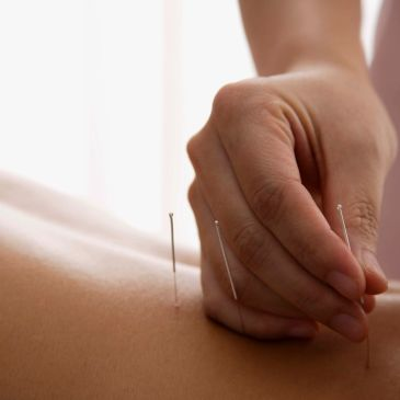 Norwest Lakeside Chiropractor Acupuncture clinic Jee Hue Lee  Acupuncture, dry needling