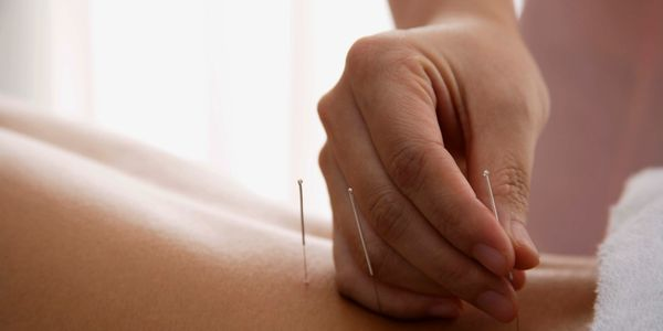 Acupuncture in Oshawa
