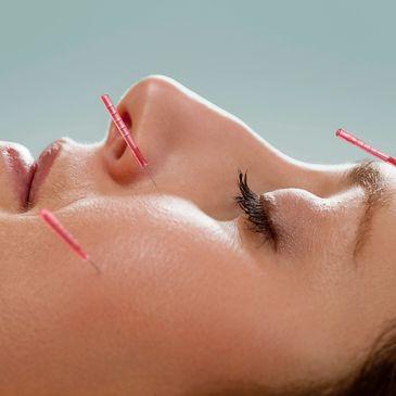 Thrive Acupuncture and Wellness in Brisbane, Queensland
