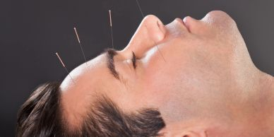 Acupuncture show promise in migraine treatment, study says