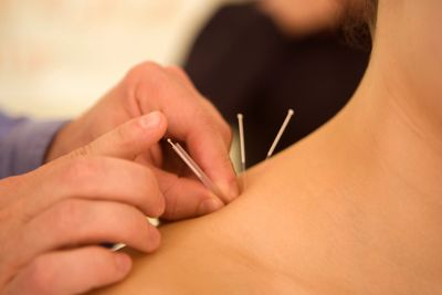 Woman with acupuncture needles on shoulder.