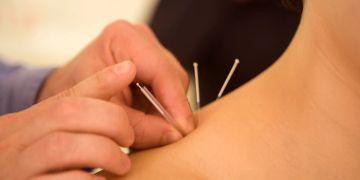 Acupuncture treatment on shoulder
