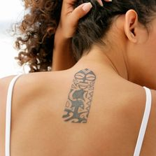 Medium tattoo pricing. Point Blank Tattoo Removal