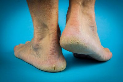 Podiatry, foot care