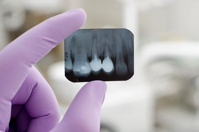 General Dentistry xrays help dentist see exactly what is happening with the tooth and gums.