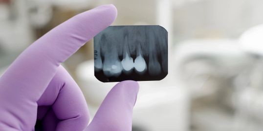 xray of teeth with poor prognosis Scottsdale