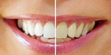 El Paso, TX Dentist Teeth Whitening