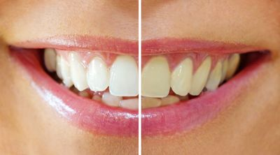 Results of our at home professional strength teeth whitening solution made by the industry's leader