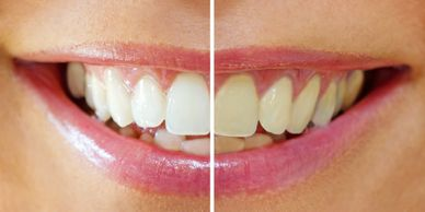White teeth, teeth that have received whitening.