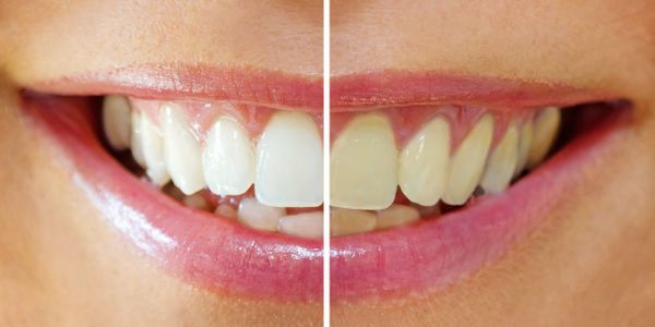 Zoom, whitening, whitening trays, tooth bleach, yellow,stains, cosmetic,smile
