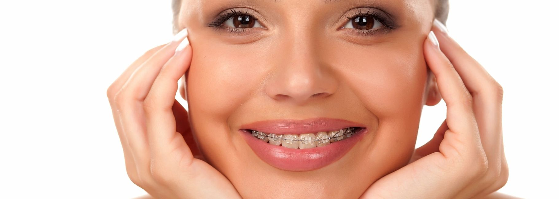 Ceramic braces helping to create a beautiful smile!