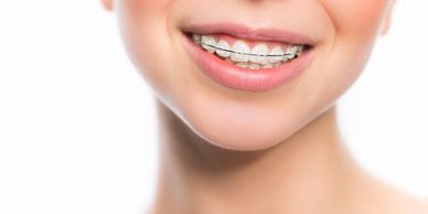 Orthodontist Invisalign West Side Family Dental New York Manhattan Upper West Side
